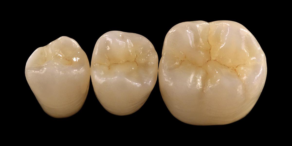 Prettau Zirconia Dentiform Australia