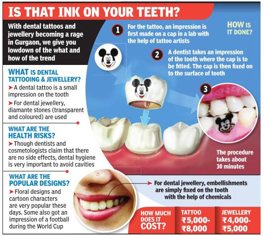 Tattoos move from the body to the teeth - Stay Informed